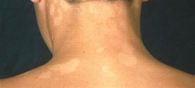 Хвороба білих плям