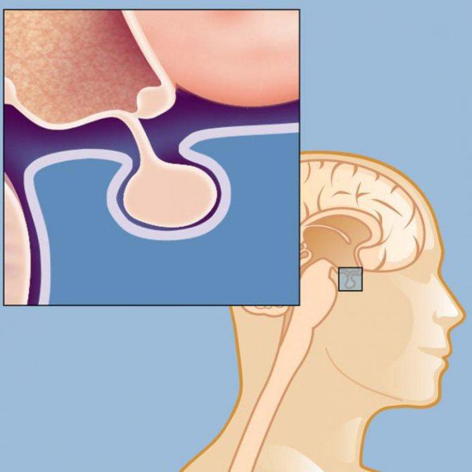 хвороба гіпофіза симптоми