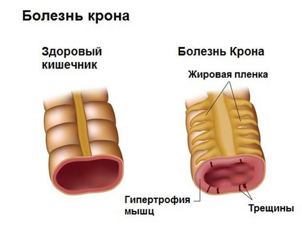 Хвороба Крона викликає біль у правому підребер'ї