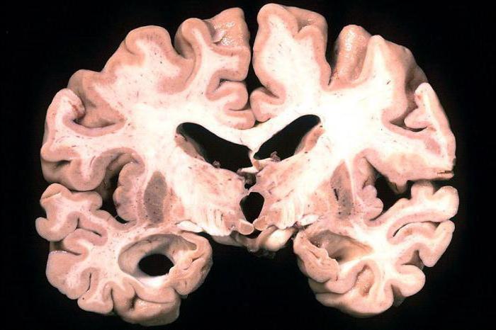 хвороба Паркінсона і Альцгеймера