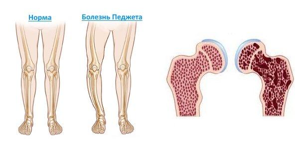 хвороба Педжета кісток