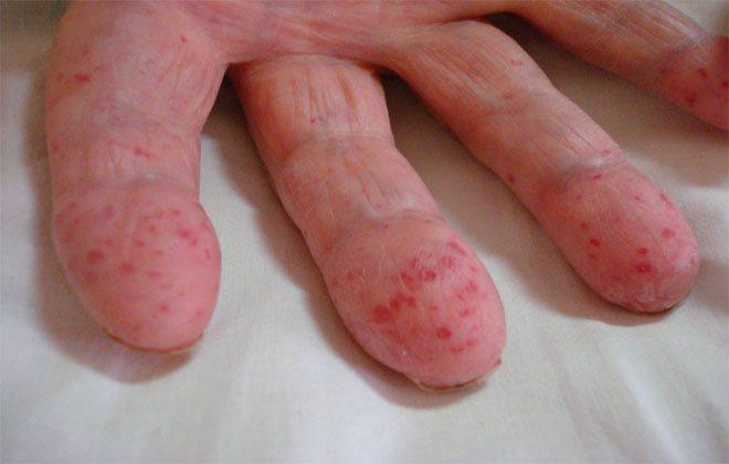 Хвороба рандом Ослера-Вебера