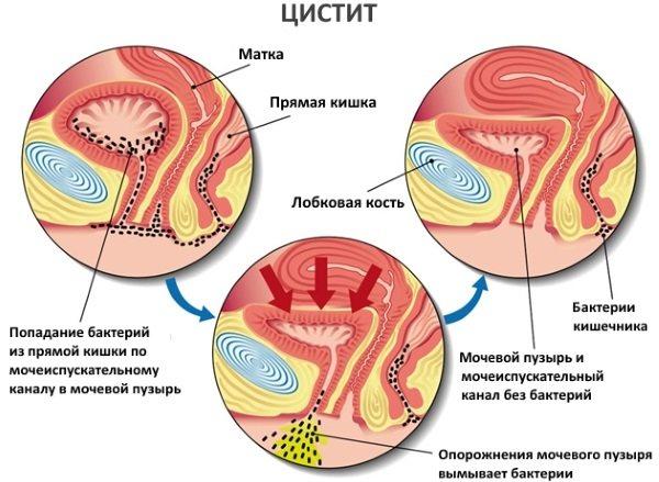 Хворобліве сечовіпускання у жінок часто, в кінці, з кров'ю.  Причини и лікування