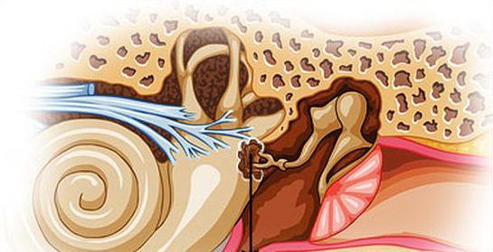 хвороби вуха симптоми