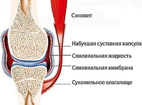 Болі в суглобах пальців рук.  Причини і лікування медикаментозними препаратами і народними засобами