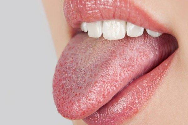 болить язик