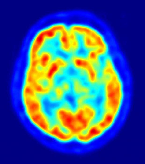 хворі хворобою Альцгеймера
