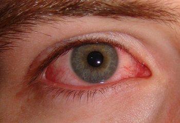 болять очі від зварювальних робіт