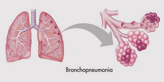 Бронхіальне запалення легенів