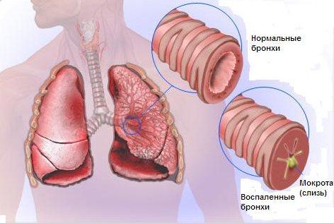 Бронхіт и інші захворювання