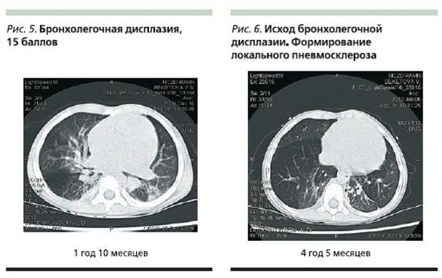 Бронхо-легенева дисплазія
