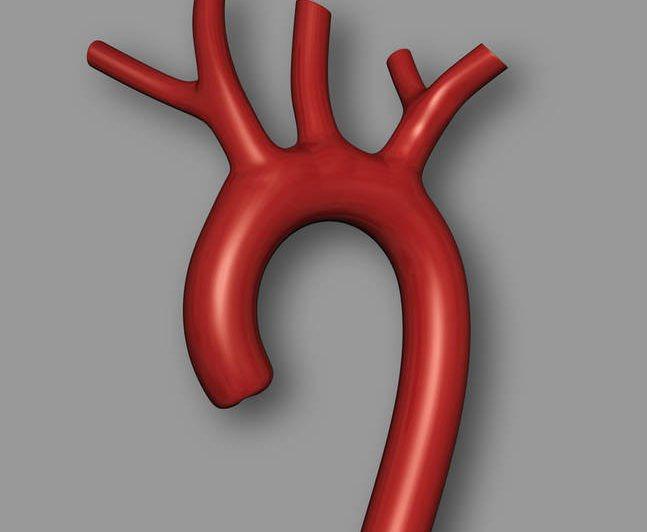 черевна аорта