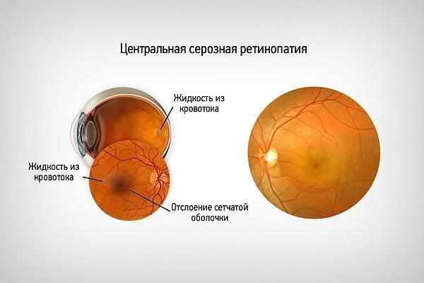 Центральна серозна ретинопатія