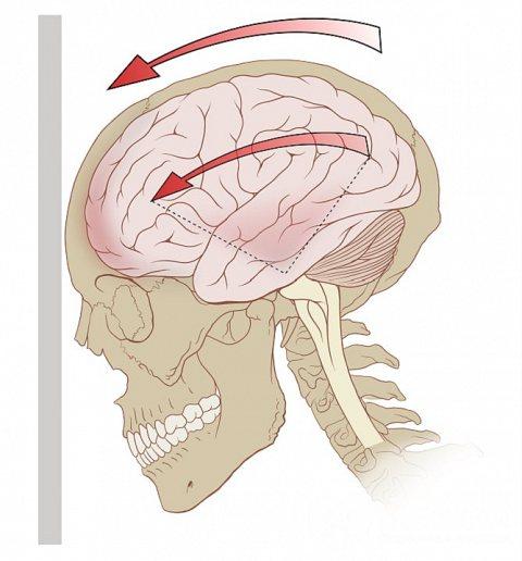 Найчастіше струс головного мозку є наслідком травм і ударів головою