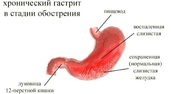Часта причина хронічного гастриту типу «В» - прісутність в шлунково середовіщі бактерії хелікобактер пілорі.