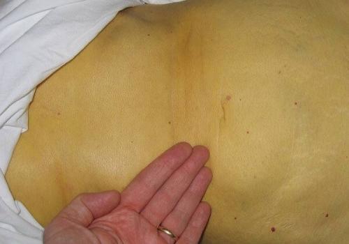 Людина пожовтів і схуд. Пожовкла шкіра - це гепатит або отруєння. Що робити?
