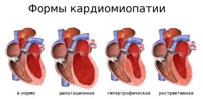 Чим кардіодістрофія відрізняється від кардіоміопатії