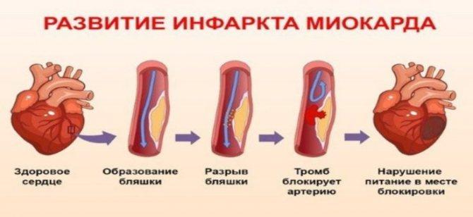 Чим небезпечний метаболічний синдром