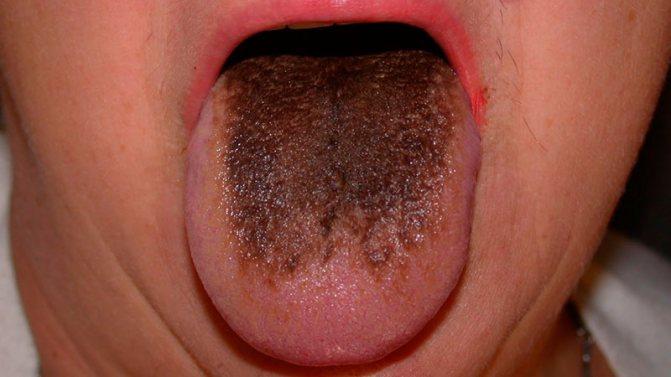 Чорний Наліт на язик дорослих, у дитини: причини, лікування, фото