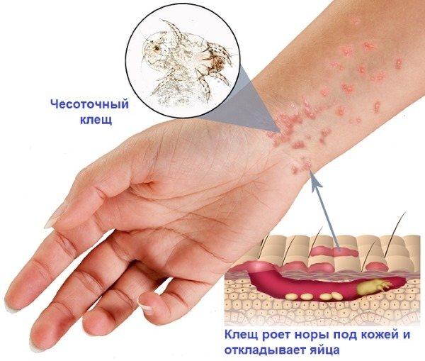 Короста у дорослих. Cімптоми, фото ознак, лікування в домашніх умовах народними засобами, препарати