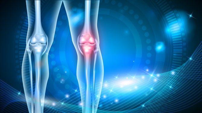 що лікує ревматологія?