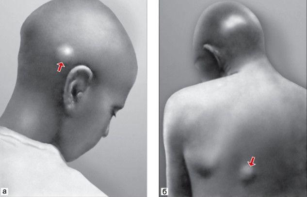 Що потрібно знати про підшкірніх паразітів