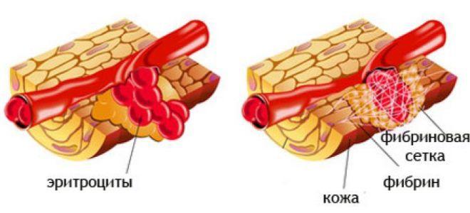 что показує фібріноген в крови