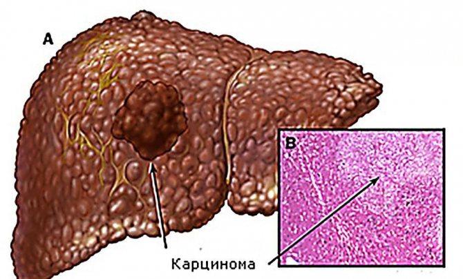 що таке карцинома печінки
