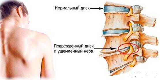 Що таке міжхребцевий остеохондроз