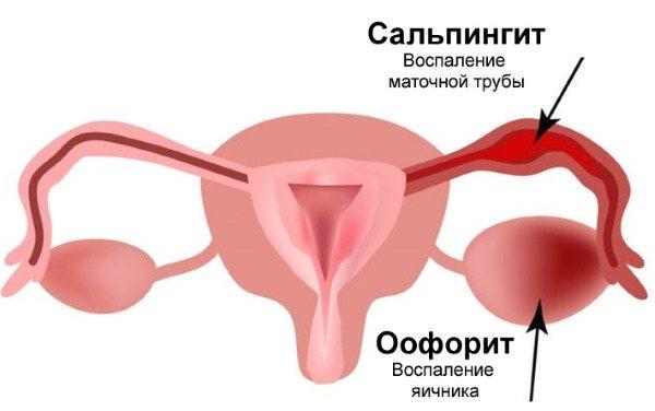 Що таке мікоплазма у жінок. Симптоми і лікування народними засобами, препарати. Причини виникнення, як передається, аналіз