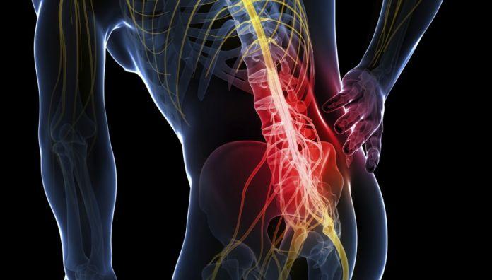 Що таке невралгія?  Причини, симптоми І спосіб лікування
