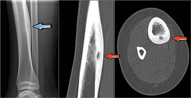 Що таке остеома кістки і яку вона несе небезпеку