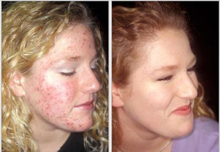 цинкова мазь - до і після: фото