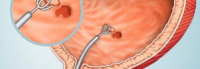 Цістоскопія Січових міхура у жінок, чоловіків та дітей: як роблять ...
