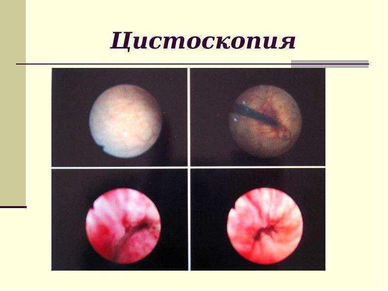 Цістоскопія при вагітності розшифровка
