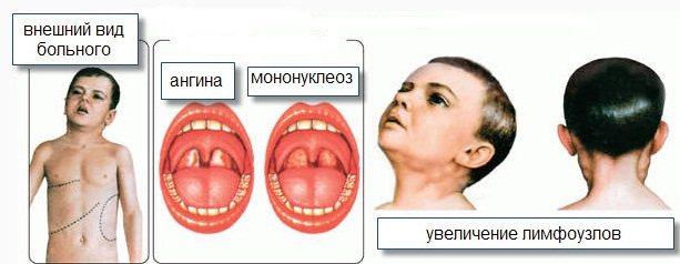 Цитомегаловірусна інфекція у дітей. Симптоми і наслідки, вроджена, хронічна, гостра форма, лікування