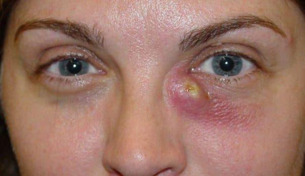 Дакріоцистит у дорослих лікування, причини