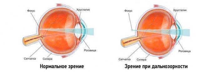 Далекозорість (гіперметропія)