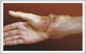 Деформація кінцівок при саркомі