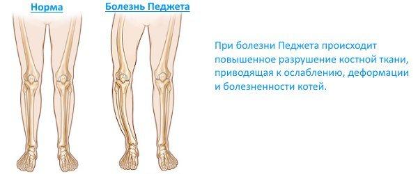 Деформація кісток при хворобі Педжета