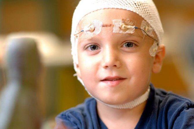 Дитяча епілепсія