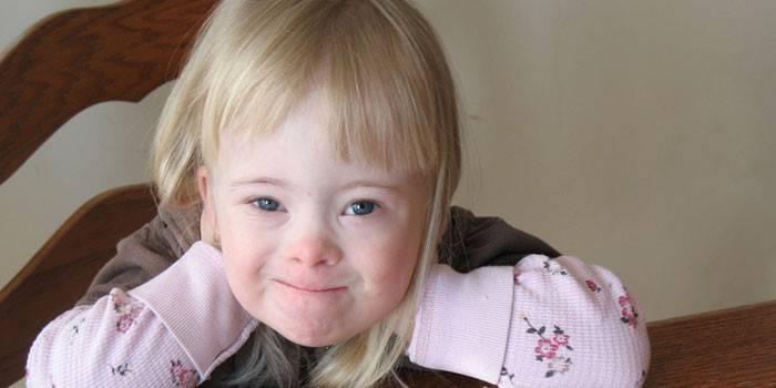 Дівчинка з синдромом Дауна