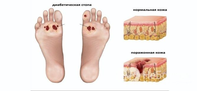 Діабетічна ангіопатія Судін ніжніх кінцівок