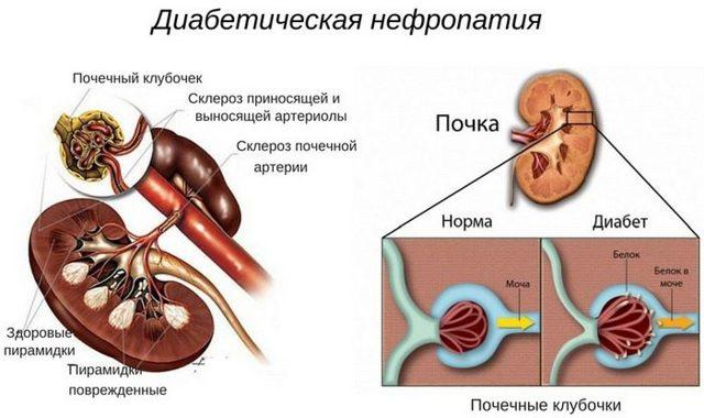 Діабетічна мікроангіопатія при Цукрове діабеті