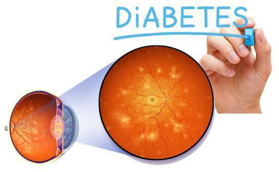 діабетічна ретінопатія Симптоми