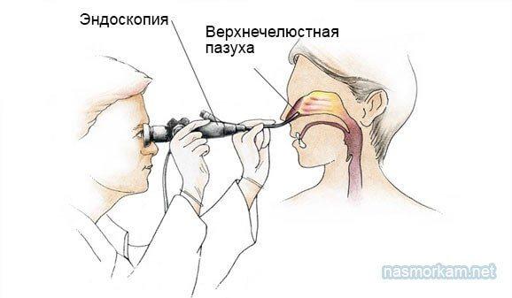 діагностична сінусоскопія