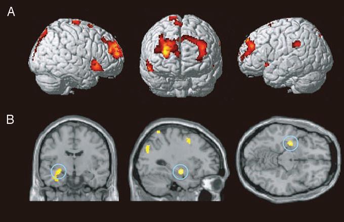 діагностика амнезії