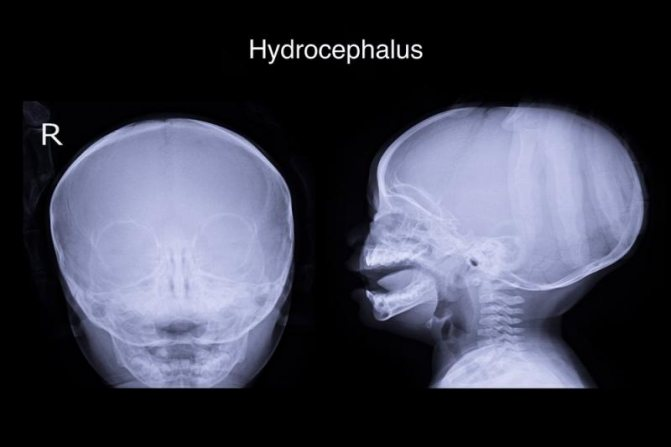 Діагностика гідроцефалії у дітей