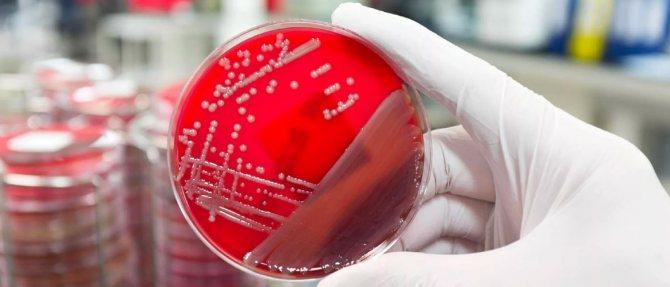 Діагностика хламідій - які аналізи потрібні?