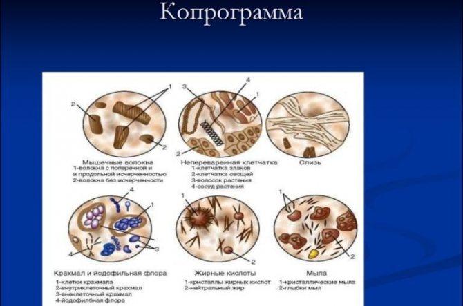 Діагностика хронічного ентериту кишки